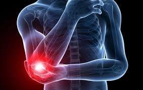 Platelet-rich plasma versus open surgical release inchronic tennis elbow: A retrospective comparativestudy
